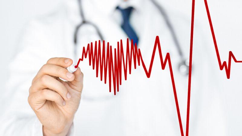 Elettrocardiogramma Dinamico